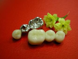 Zahnlabor Maresch Ostrau, Bild Nr. 16